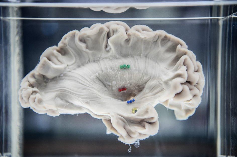 Hjerner på Panum Instituttet.  Hjerne i montre.