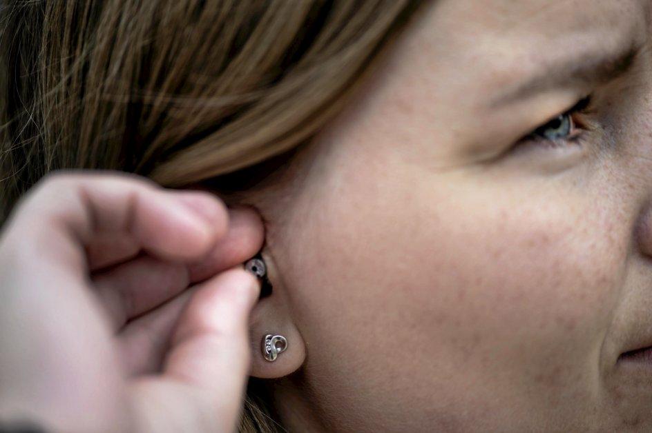 I det ene øre hører Amalie Mellin sin tinnitus som en hylen, i det andet som en dyb susen. En såkaldt tinnitusmaske i ørerne hjælper hende med at neutralisere støjen. —