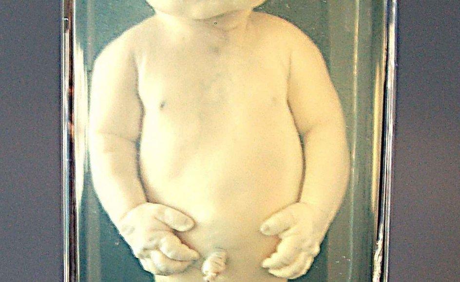 """Udstillingen """"Det uperfekte barn"""" kan ses på Steno Museet i Århus indtil den 1. februar 2009. -"""