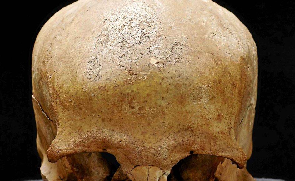 Dette kranium blev op gennem middelalderen æret som den hellige Lucius, der blev skytshelgen for Roskilde Domkirke. Men kraniet er mindst 86 år for ungt til at kunne være Lucius. -