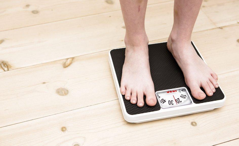 """""""Vi vil have anerkendt svær overvægt som en kronisk sygdom, fordi prioriteringen af lidelsen er meget lav lige nu"""", siger formand for det udvalg, som beskæftiger sig med overvægt."""